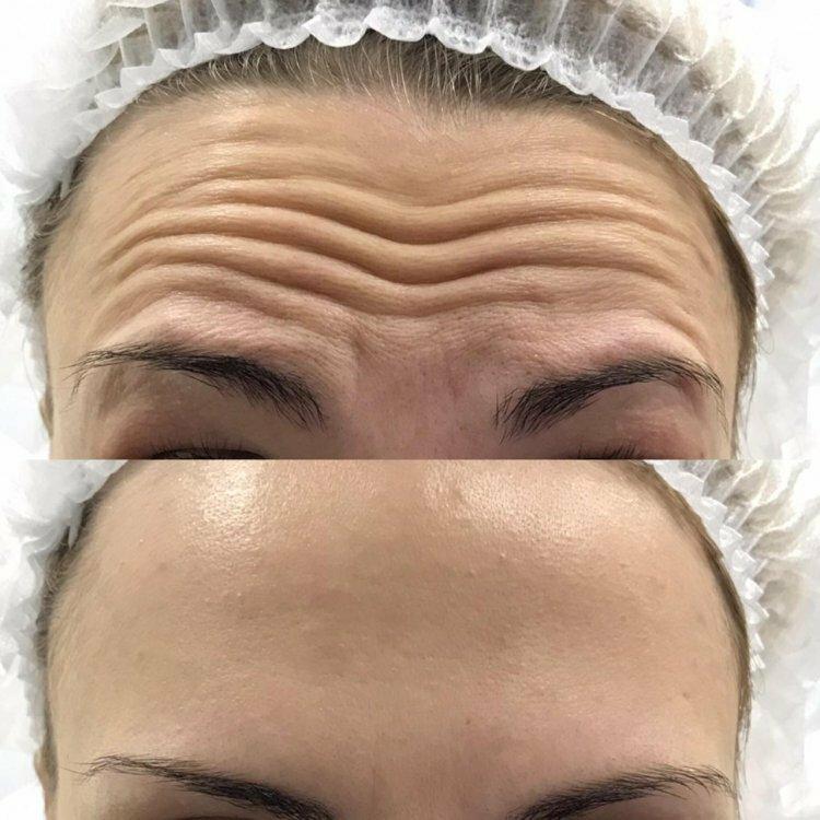 Какие 8 видов ботокса используют косметологи для процедуры омоложения кожи лица