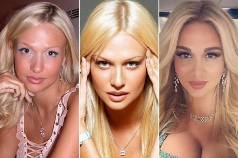 Сложно поверить, что это один человек: фото виктории лопыревой до и после пластики и ретуши