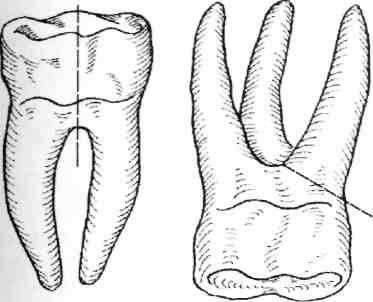 Особенности удаления корней зубов на нижней и верхней челюсти: показания, методы и инструменты
