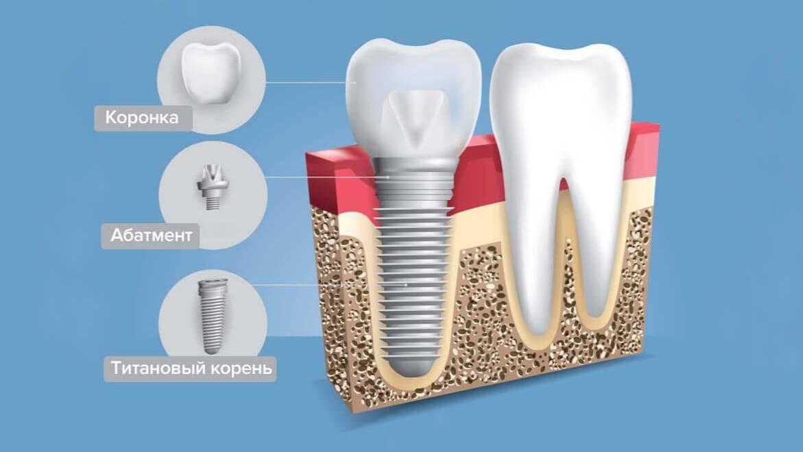 Что должно быть прописано в договоре на имплантацию зубов