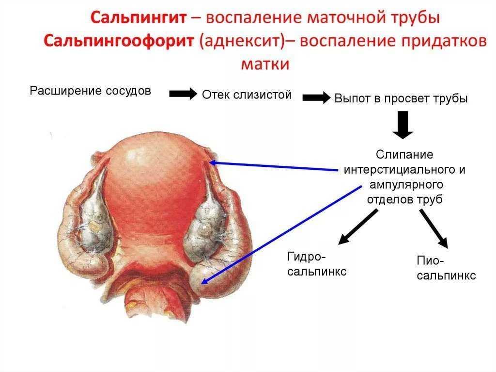 Диагноз хронический сальпингоофорит