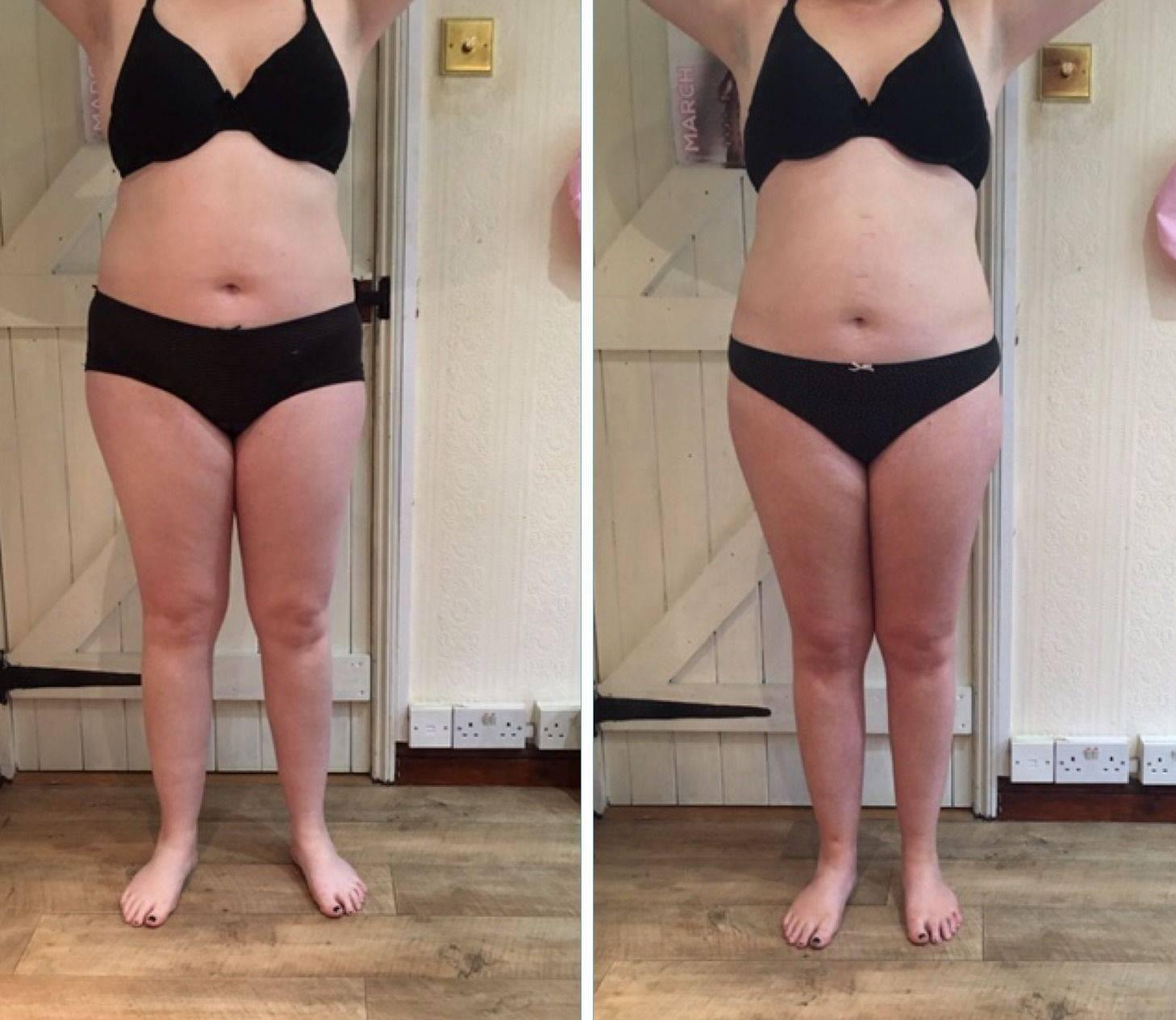 Рецепт похудения – кавитация: что это за процедура, противопоказания, плюсы и минусы