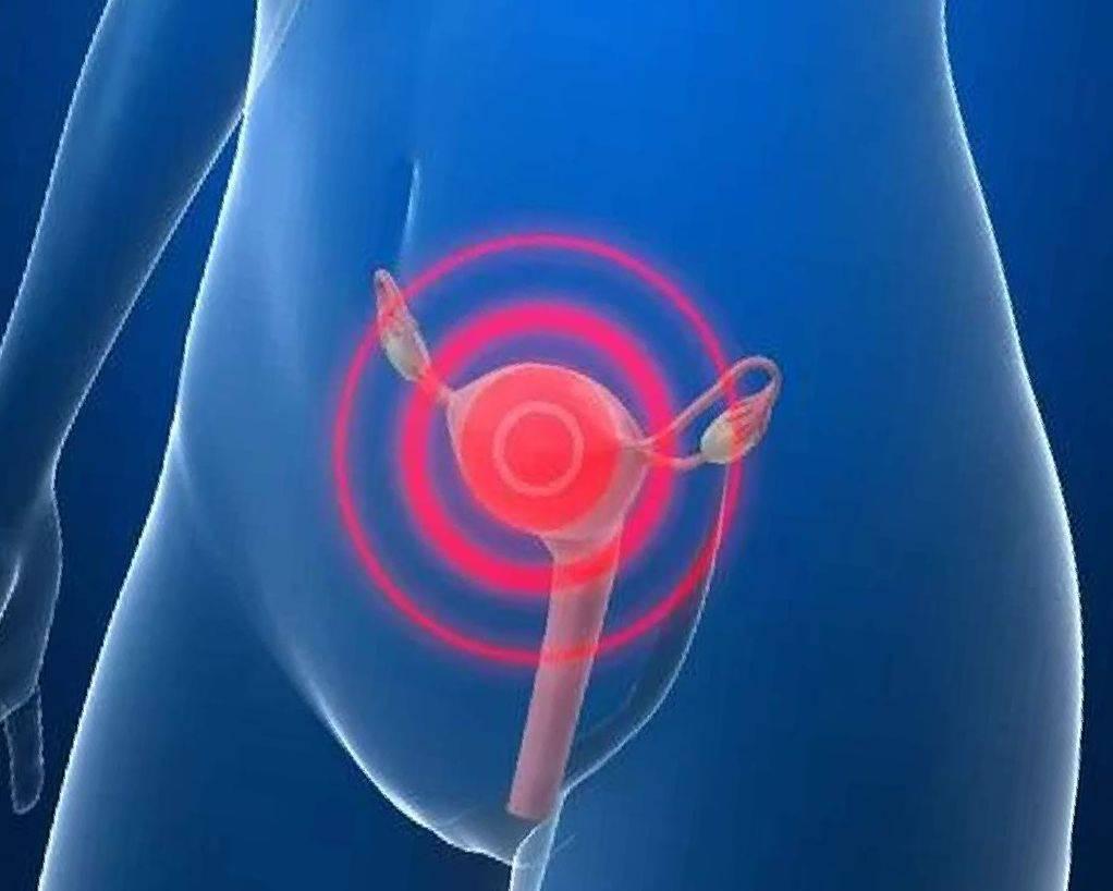 Как проходят месячные при эндометриозе