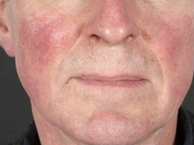 О каком характере человека расскажет кончик носа