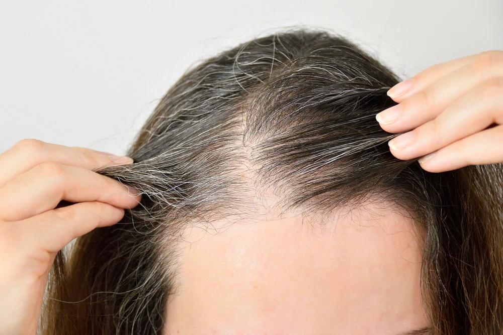 От чего седеют волосы у молодых?