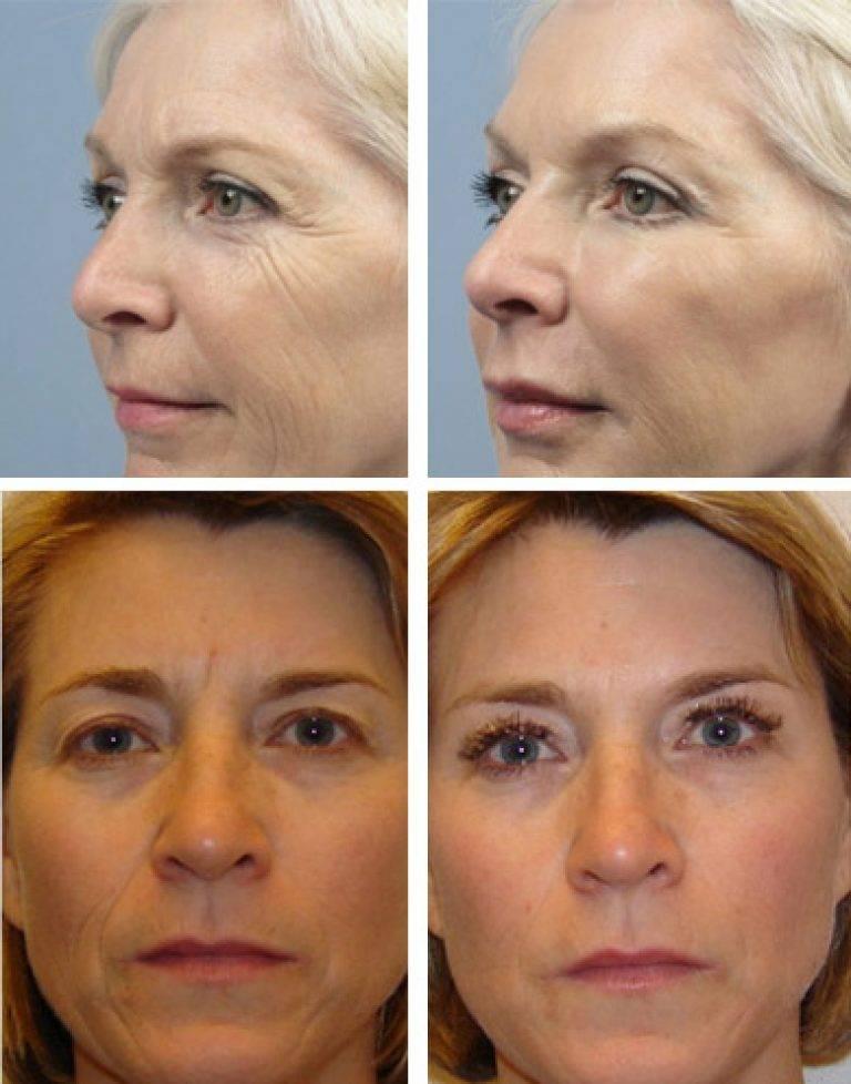 Цинковая мазь для лица: полезные свойства и способы применения