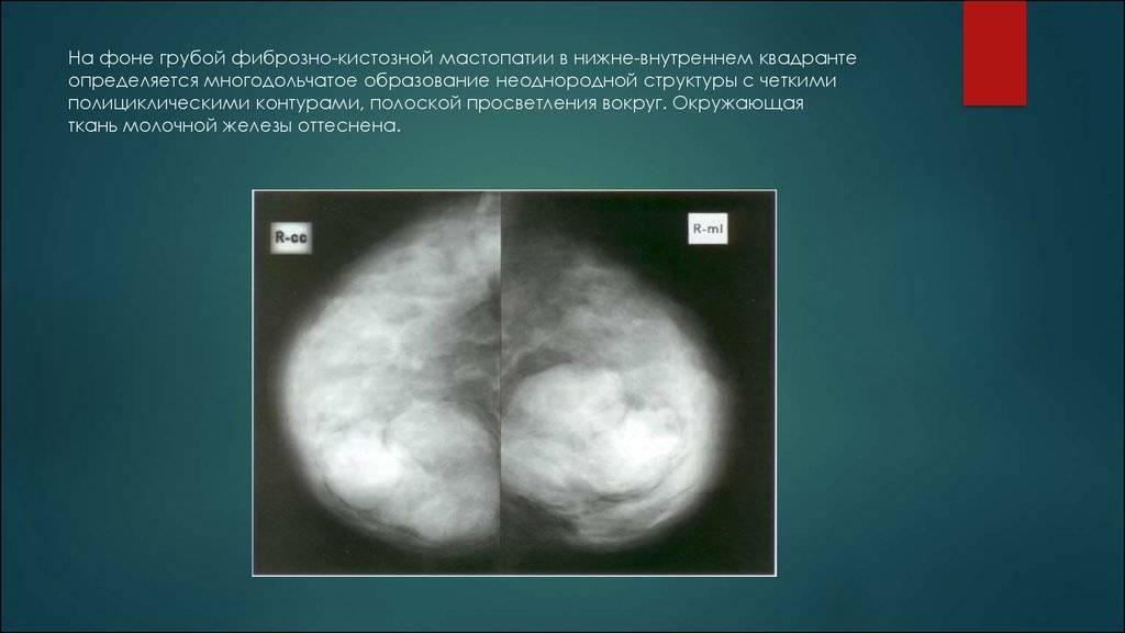 Ограниченный фиброз молочной железы. фиброз молочных желез: диагностика и лечение
