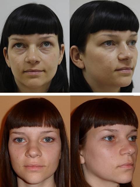 Пластическая хирургия глаз: виды операций, цены, противопоказания, восстановление