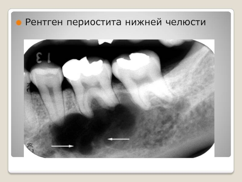 Перелом нижней челюсти – код по мкб10, симптомы, лечение