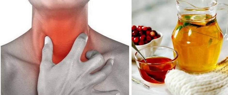Как избавиться от неприятных симптомов и проявлений острого и хронического тонзиллита