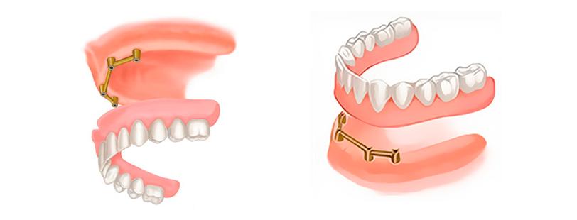 Каков гарантийный срок на стоматологические услуги по российскому законодательству?