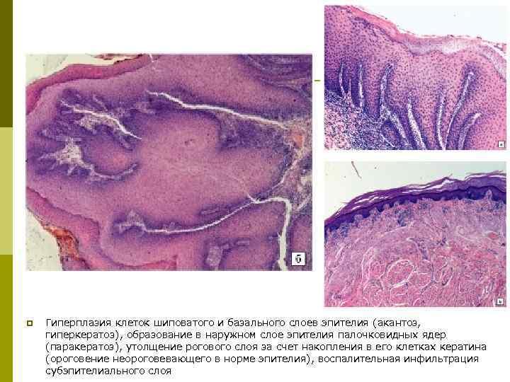 Гиперкератоз плоского эпителия шейки матки