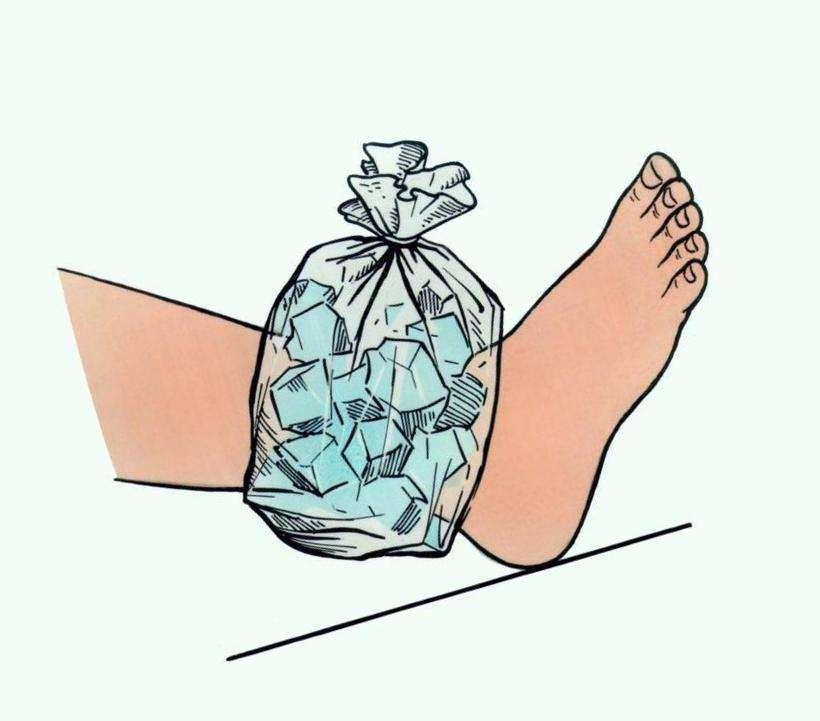 Гематома на ноге после ушиба: первая помощь и методы лечения