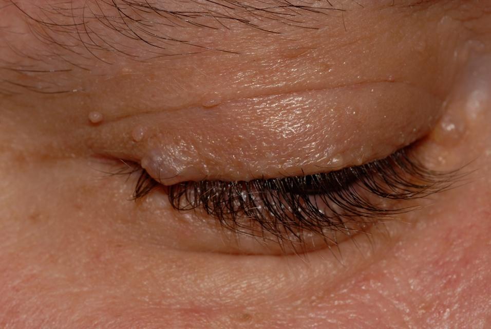 Разновидности и способы лечения наростов на коже человека