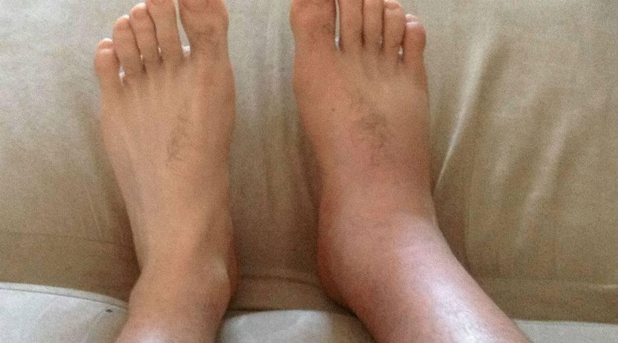 Отеки ног при беременности: насколько это опасно?