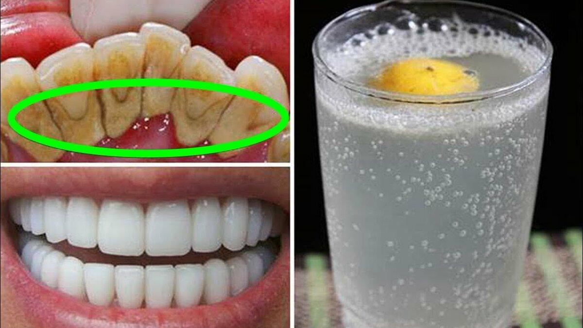 10 лучших рецептов отбеливания зубов в домашних условиях – как отбелить зубы дома?