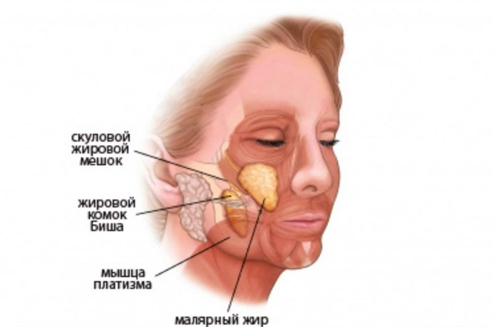 Аденома слюнной железы, причины и удаление, последствия