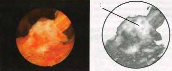 Что такое плацентарный полип после родов: симптомы, диагностика и лечение