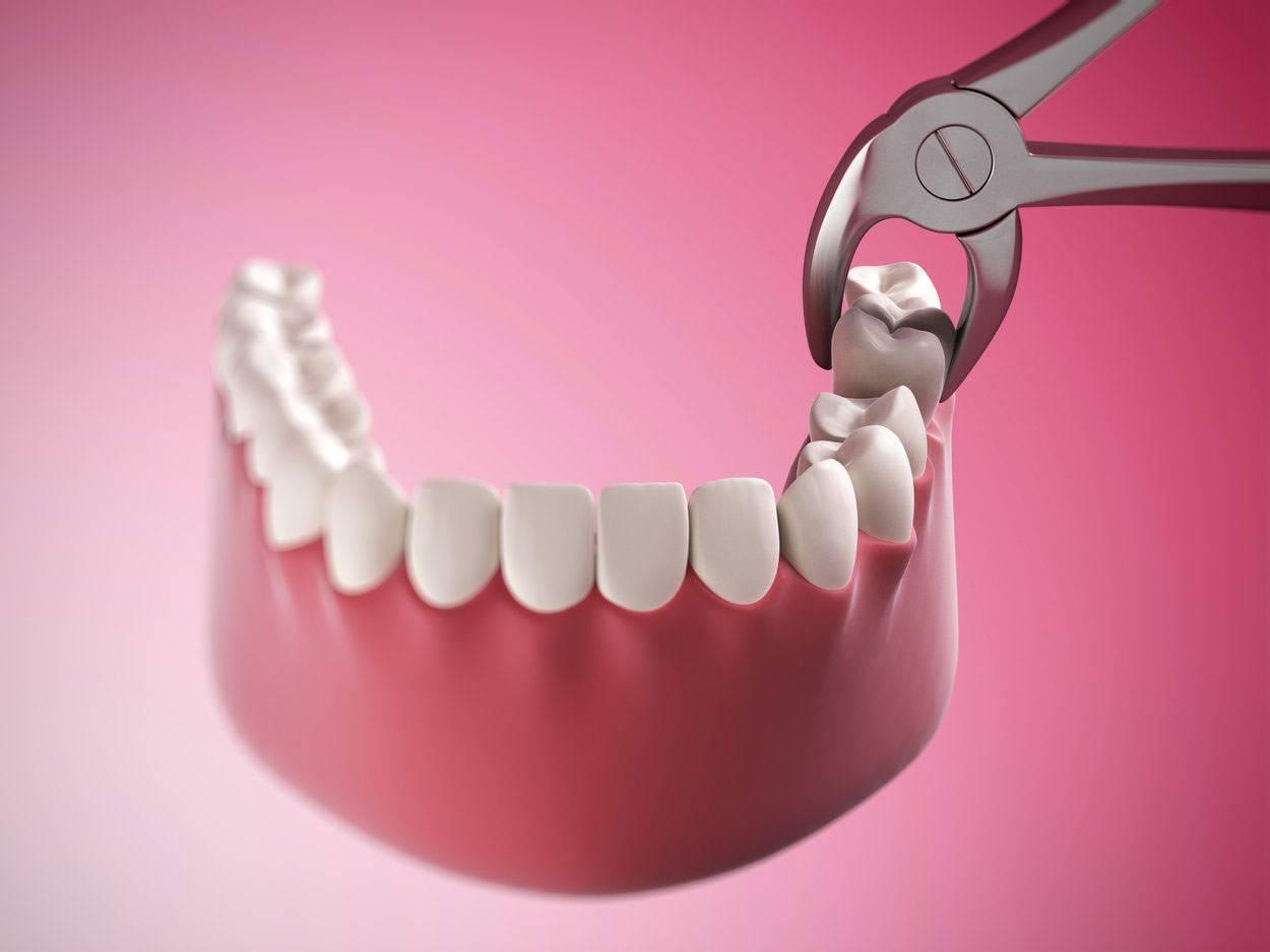 Как подготовиться и провести операцию с минимальными последствиями: удаление зуба мудрости