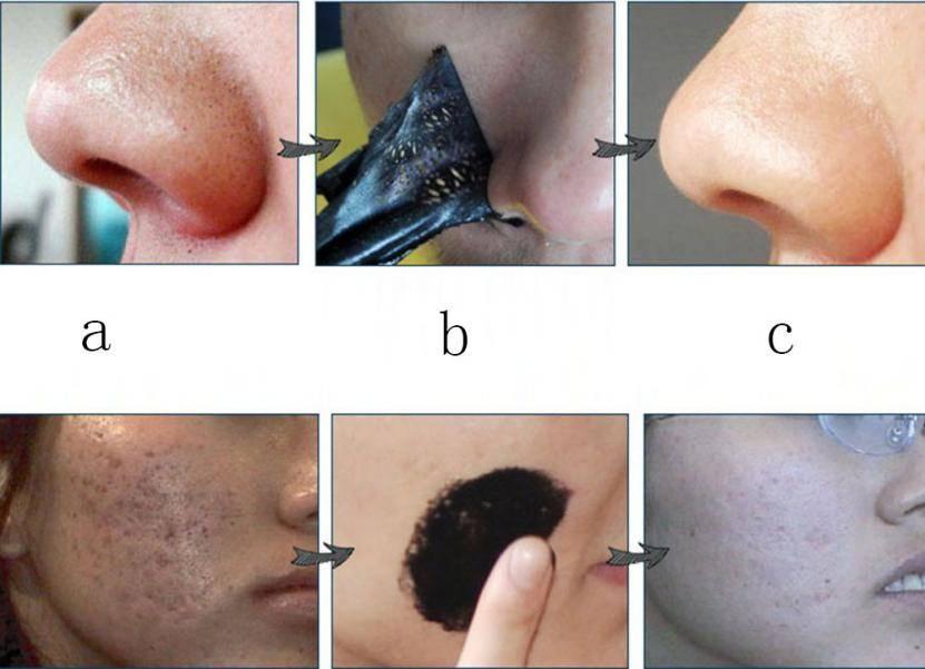 Комедоны на лице: как избавиться от неприятных черных точек