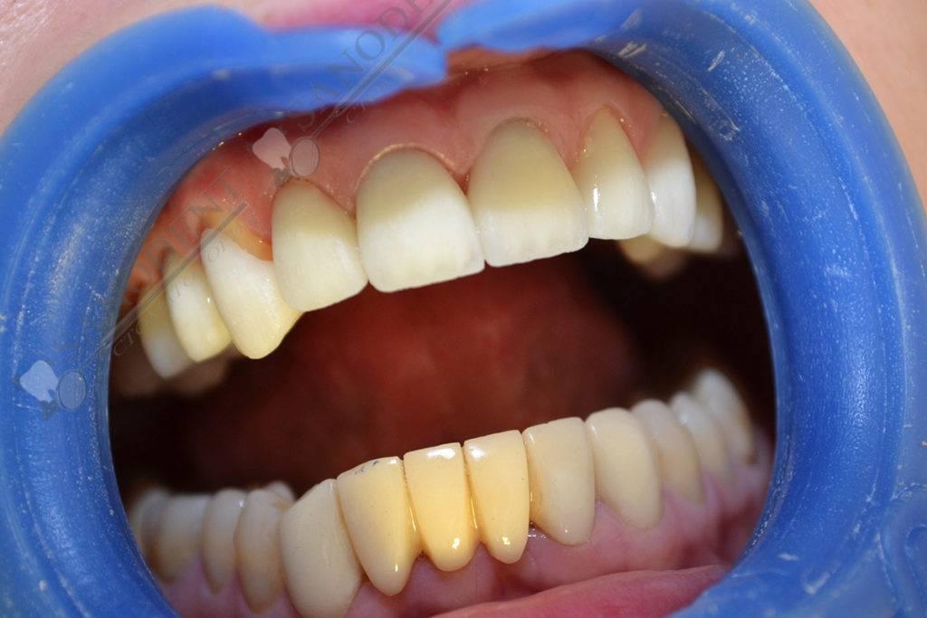 Литые зубные коронки из металлопластмассы