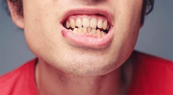 Как быстро вылечить герпес на губах — самые эффективные методы лечения простуды