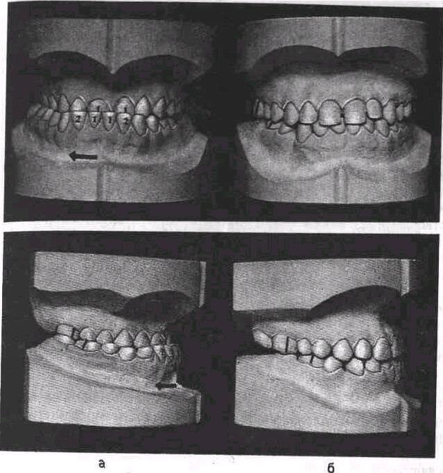 Открытый прикус зубов у детей и взрослых