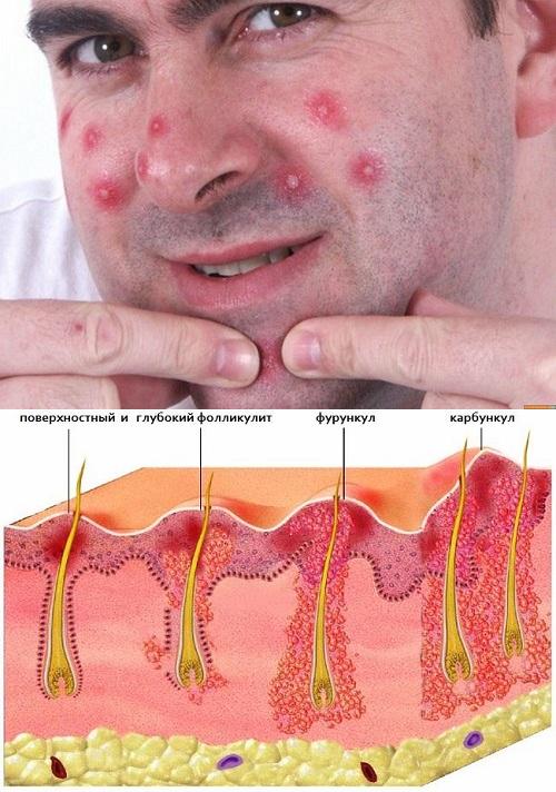 Мази от фурункулов: вытягивающие, антисептические, заживляющие