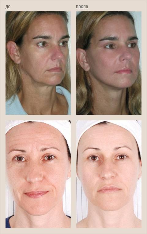 Уход за лицом после 30 лет – советы косметолога