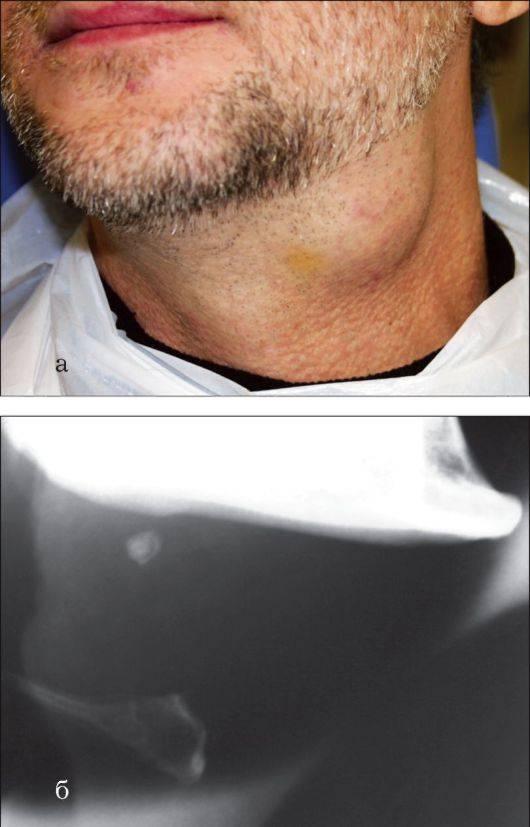 Причины появления и лечение камней в слюнных железах