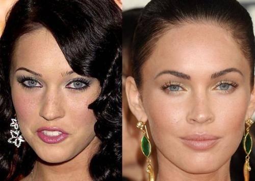 Меган фокс до и после пластики
