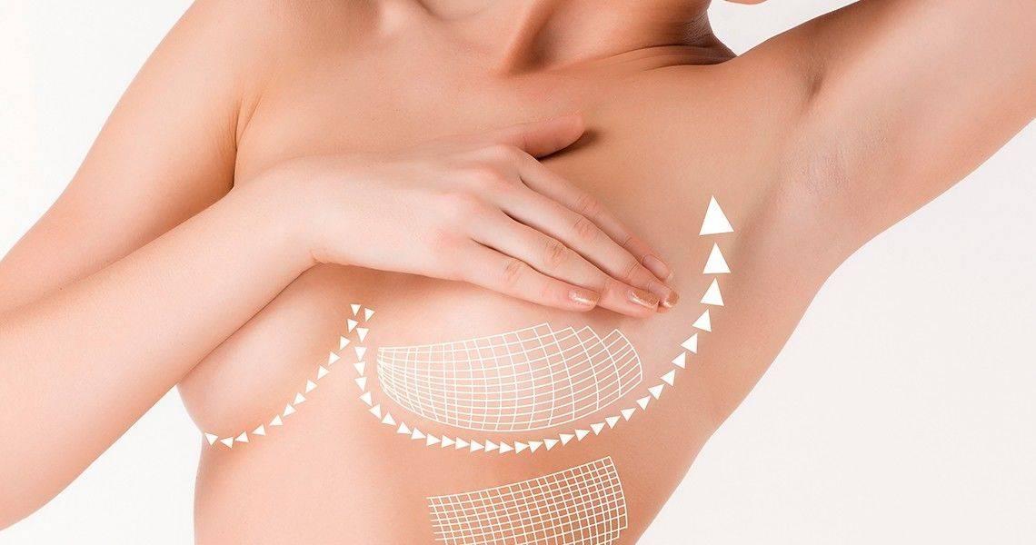 Птоз молочных желез: причины, степени, коррекция