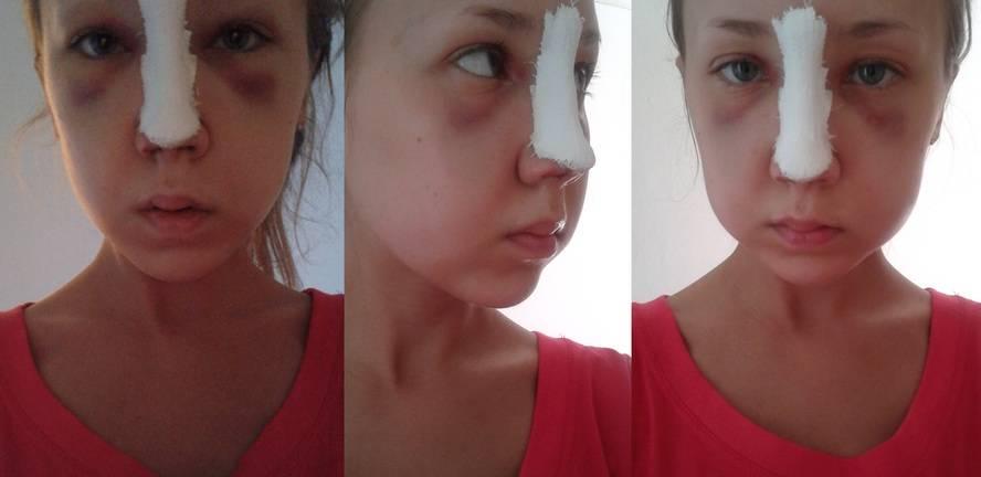 Какие результаты дает пластика кончика носа? фото до и после