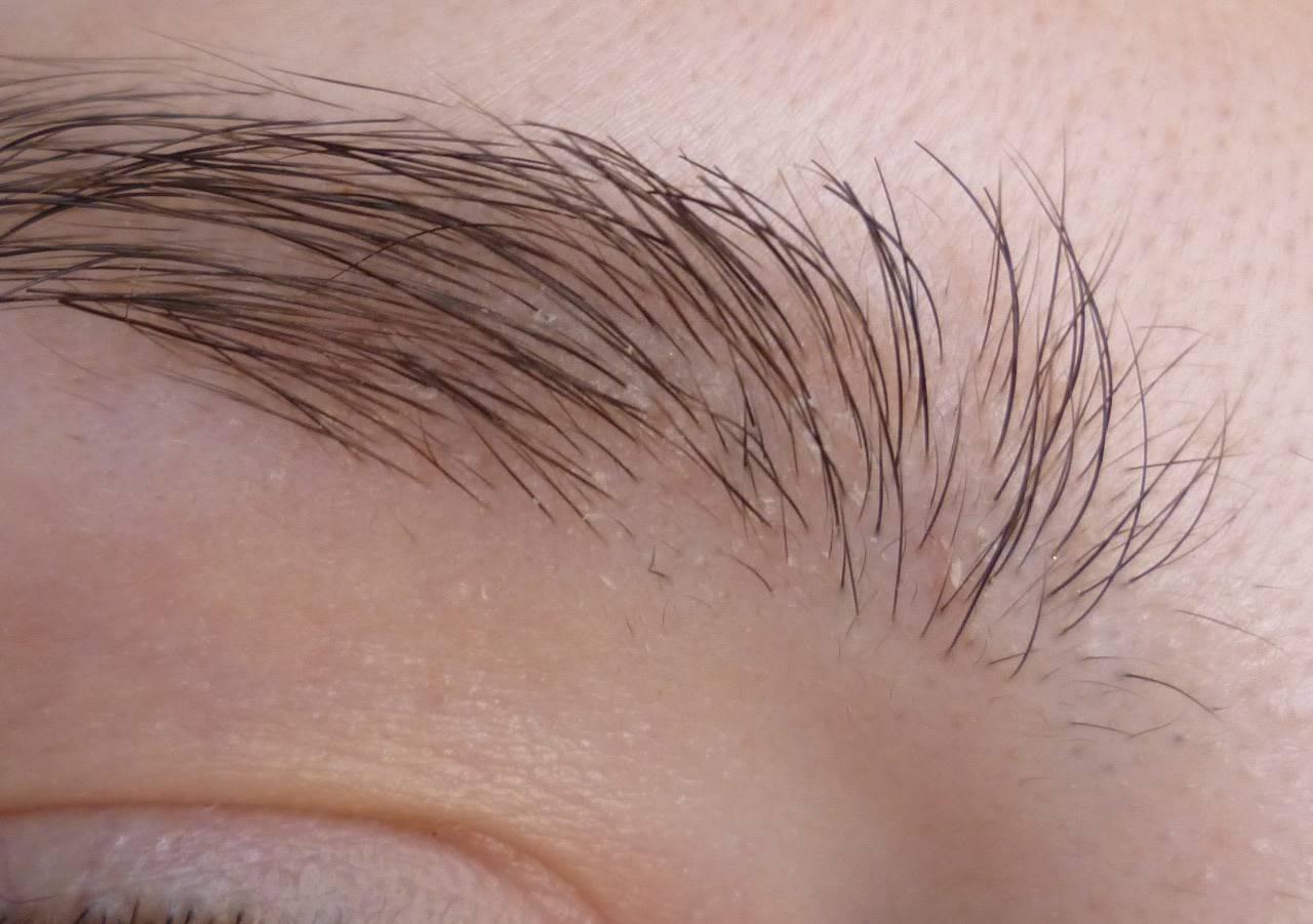 В чем причины шелушения бровей?