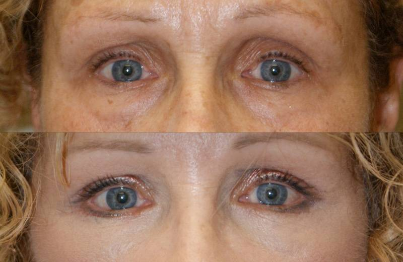 Лазерное омоложение глаз
