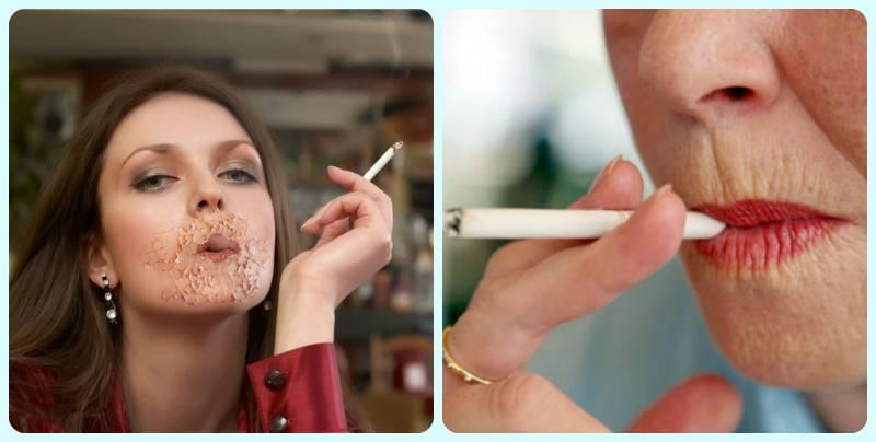 Курение – причина болей в желудке и проблем с органами пищеварения