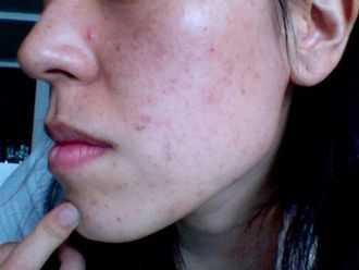 Чешется кожа на лице: причины, виды зуда, симптомы, лечение