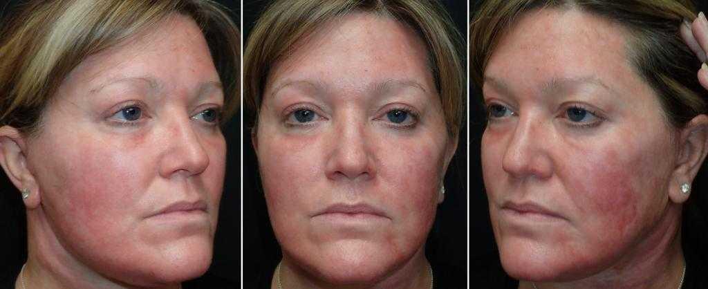 Лазерный пилинг лица — фото до и после