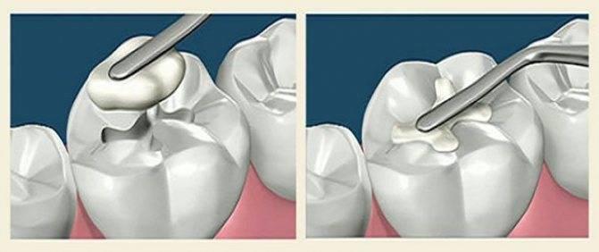 Как избавиться от зубной боли в домашних условиях быстро