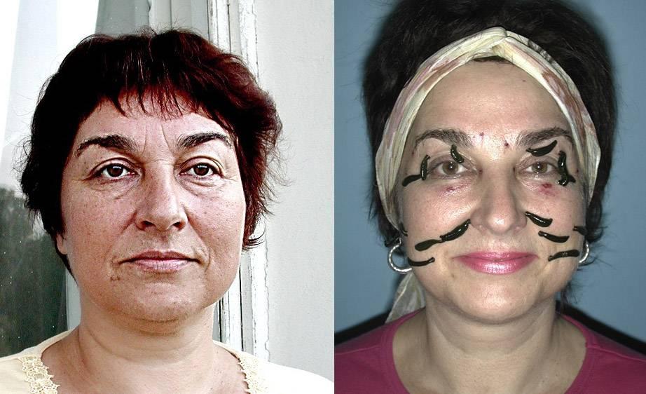 Подтяжка лица гирудотерапией