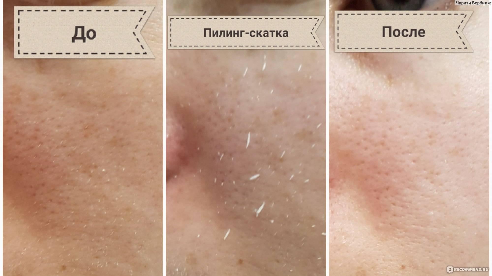 Использование пилинга скатки для кожи лица