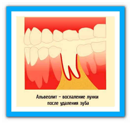 Остеомиелит челюсти после удаления зуба симптомы