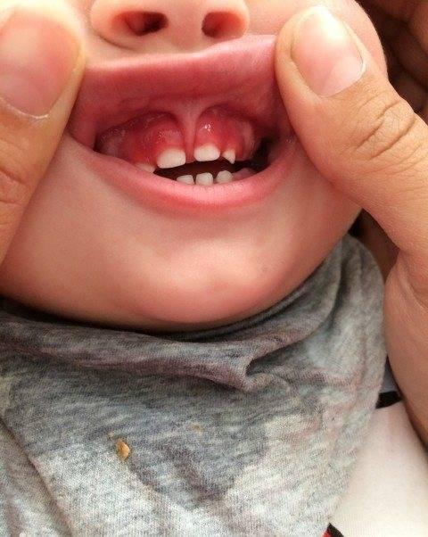 Чем лечить гингивит у детей