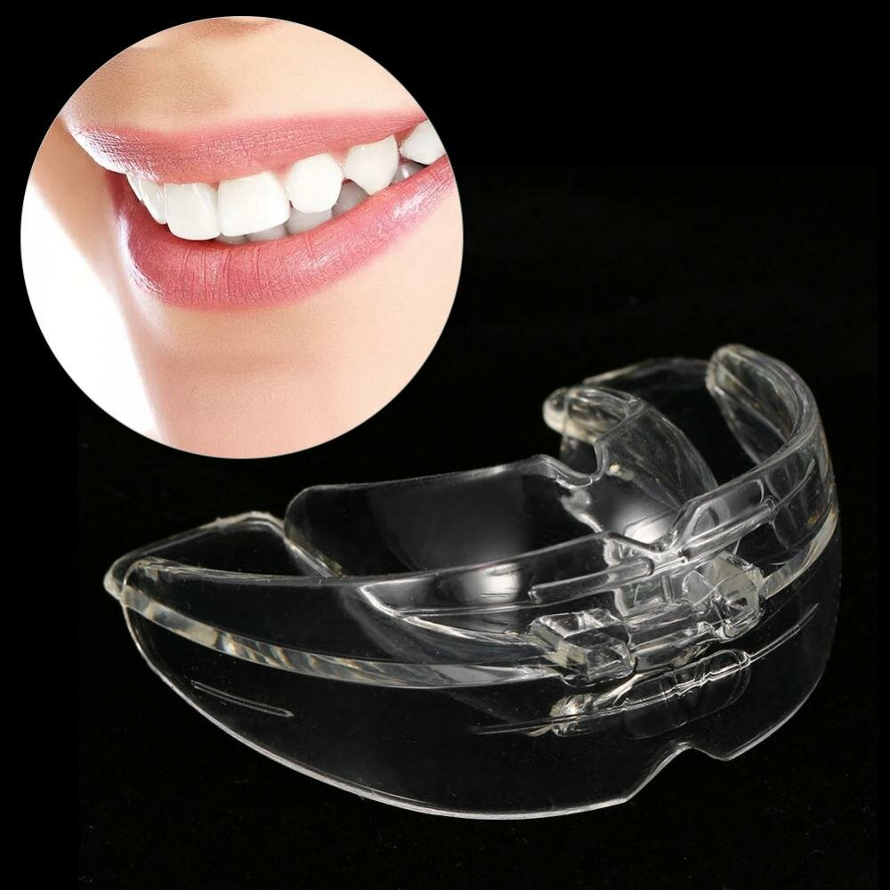 Исправление прикуса и выравнивание зубов силиконовой каппой: фото «до и после» у детей и взрослых