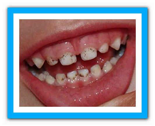 Желтые пятна на зубах у ребенка: причины и способы устранения