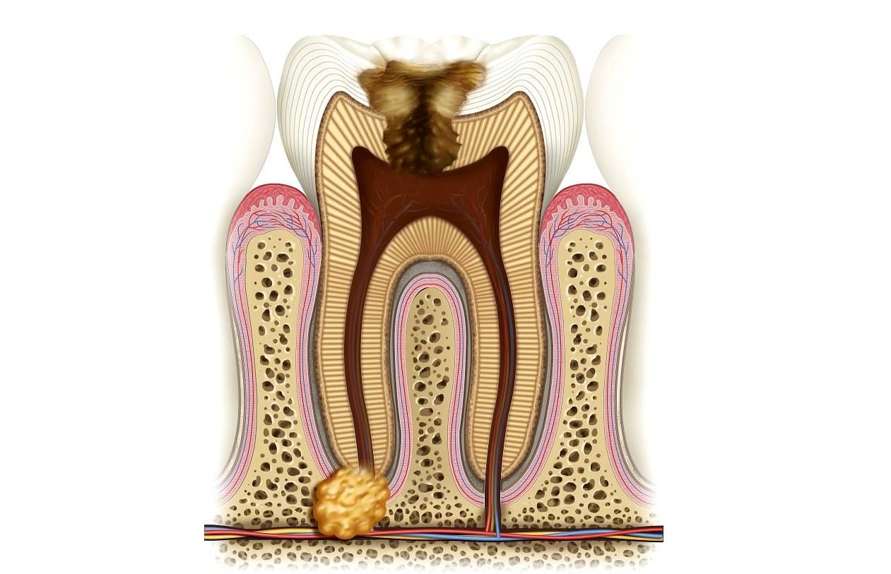 Фолликулярная киста зуба: причины возникновения, симптомы, методы лечения, отзывы. киста челюсти: эпизод первый — скрытая угроза фолликулярная киста зуба