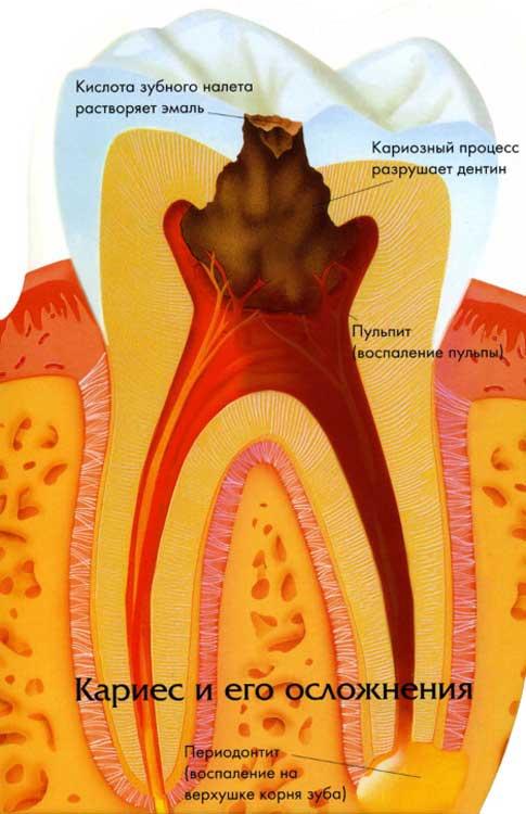 Как кариес и другие болезни полости рта влияют на весь организм