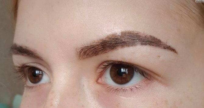 Почему под бровями шелушится кожа. причины шелушения бровей