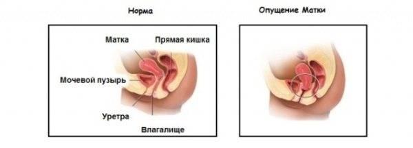 Что такое вентрофиксация матки?