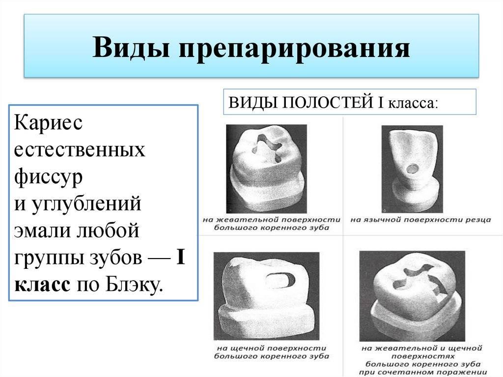 Классификация кариеса зубов по шкале блэка